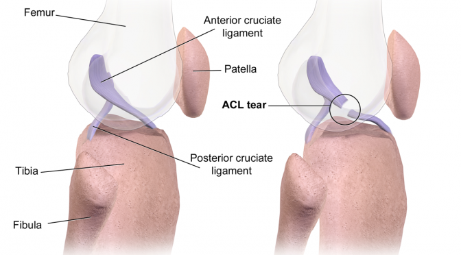 The dreaded ACL tear. (image: Bruce Blaus)